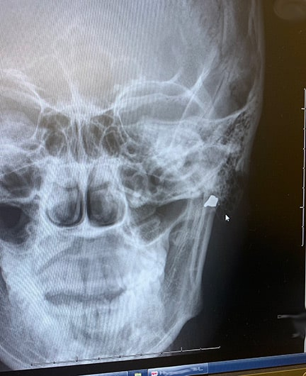Freedom High Football Player Shot in the Face With BB Gun While Fundraising for the Team